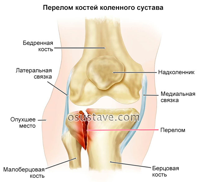 перелом костей коленного сустава