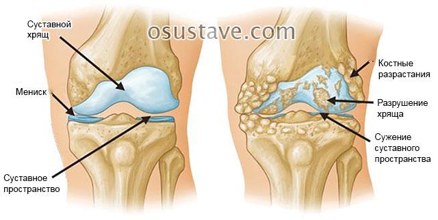 костные разрастания при гонартрозе