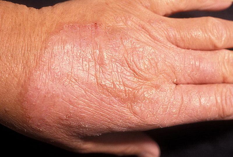 Грибковые заболевания кожи симптомы и лечение