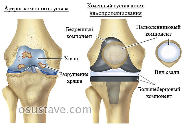 полное эндопротезирование коленного сустава