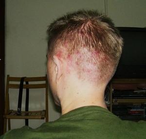 Обследование при прыщах на голове