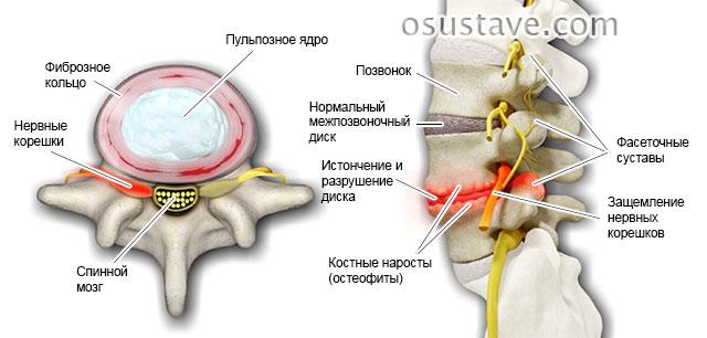 изменение межпозвоночного диска при остеохондрозе