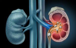 Боль в нижней правой части живота у женщин и мужчин: причины, какие заболевания, симптомы, что делать, характер болевых ощущений внизу живота справа