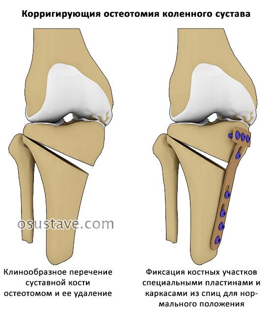 корригирующая остеотомия
