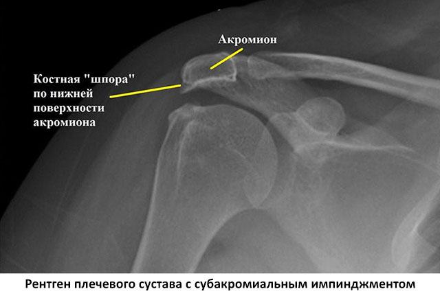рентген плеча с импинджмент-синдромом