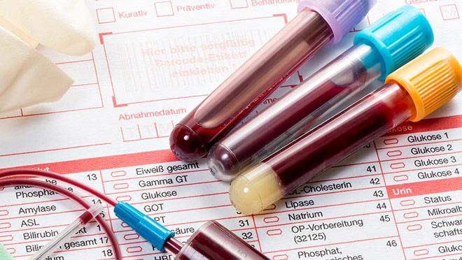 Повышен показатель АЛТ у беременных при холецистите