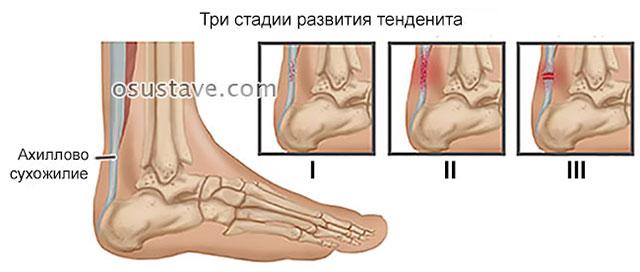 три стадии тендинита ахиллова сухожилия