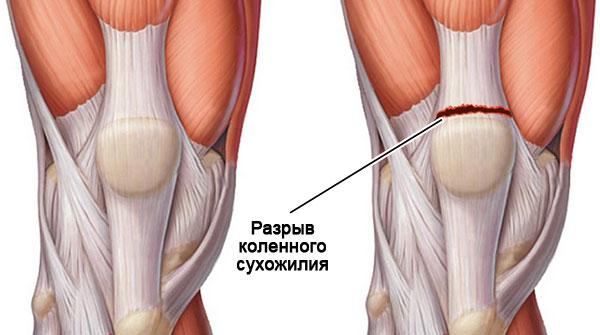 разрыв сухожилия коленного сустава