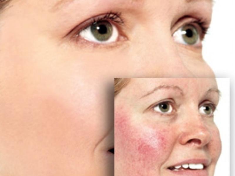 Устранение купероза кремом