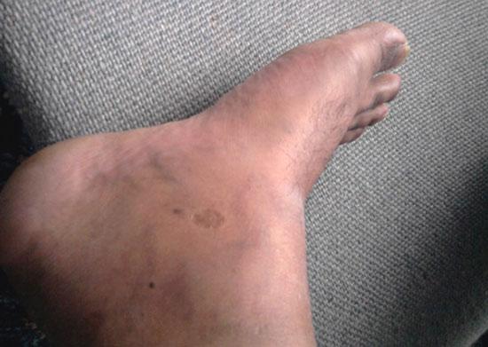 подагрический артрит голеностопа