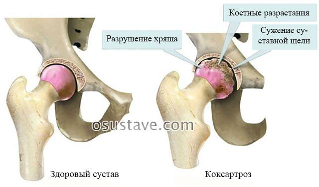 тазобедренный сустав в норме и при артрозе