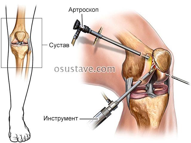 процедура артроскопии
