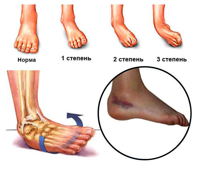 степени повреждения сустава при вывихе