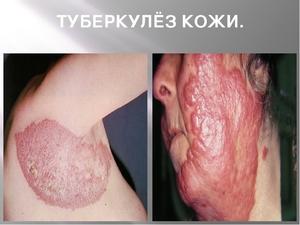 Причины туберкулеза кожи