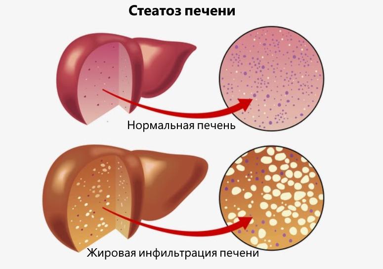 Стеатоз печени