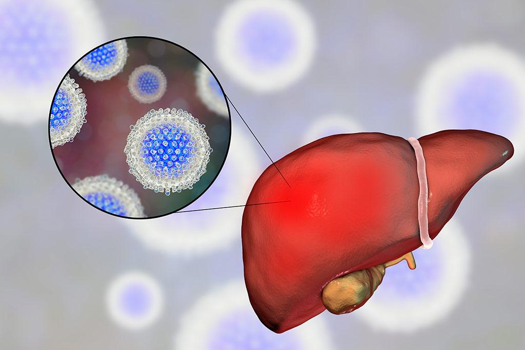 Персистирующий гепатит причины