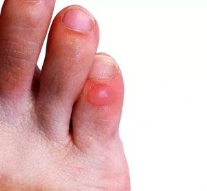Мозоль на пальце ноги