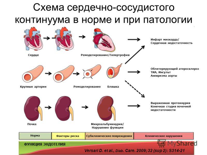 simptomy-koncentricheskogo-remodelirovaniya-levogo-zheludochka