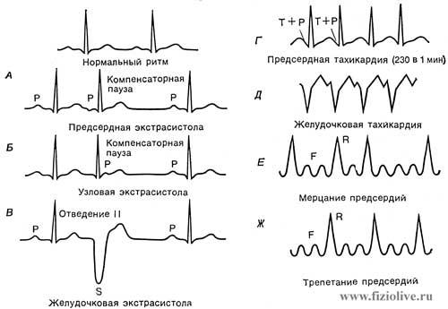 Пример кардиограмм при нарушении работы сердца