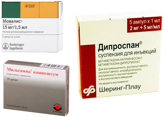 препараты Мовалис, Дипроспан и Мильгамма
