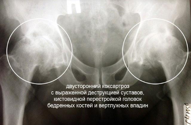 на рентгенограммах двусторонний коксартроз