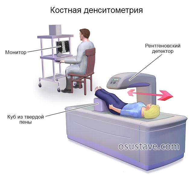 денситометрия костей
