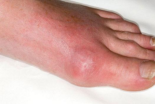подагрический артрит первого сустава большого пальца стопы