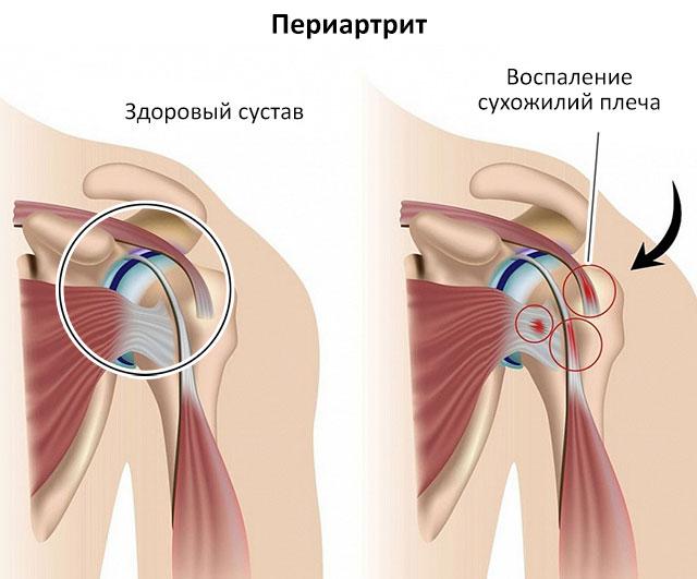 периартрит плеча как одна из возможных причин импинджмента плечевого сустава