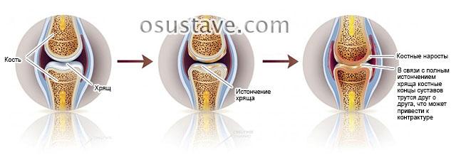 возможная артрогенная контрактура в результате артроза