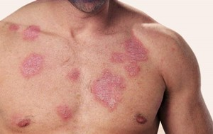Как лечить туберкулез кожи