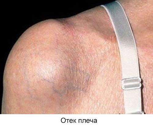 отек плечевого сустава