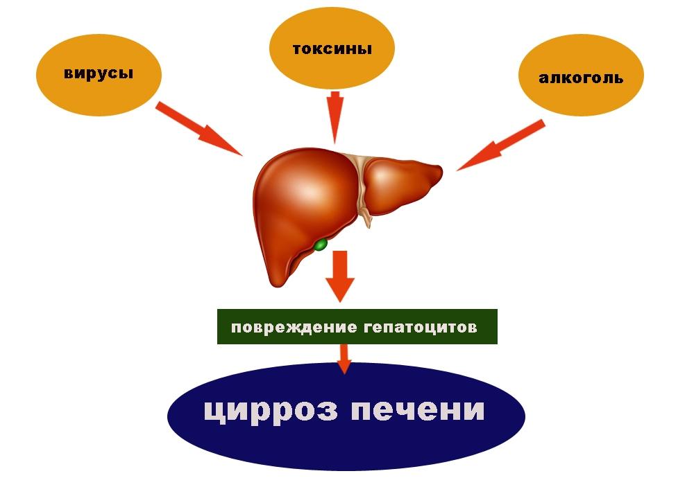 Виды цирроза печени