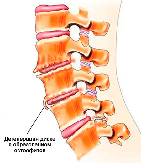 формирование остеофитов