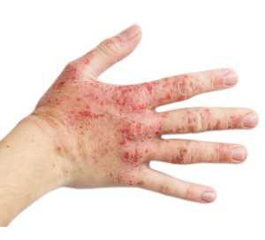 Режим дня при дерматите