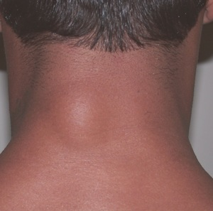 Лечение жировика на шее