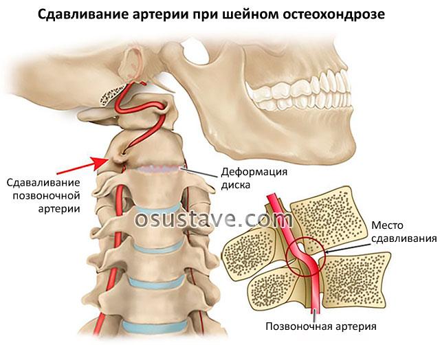 шейный остеохондроз и сдавливание артерии