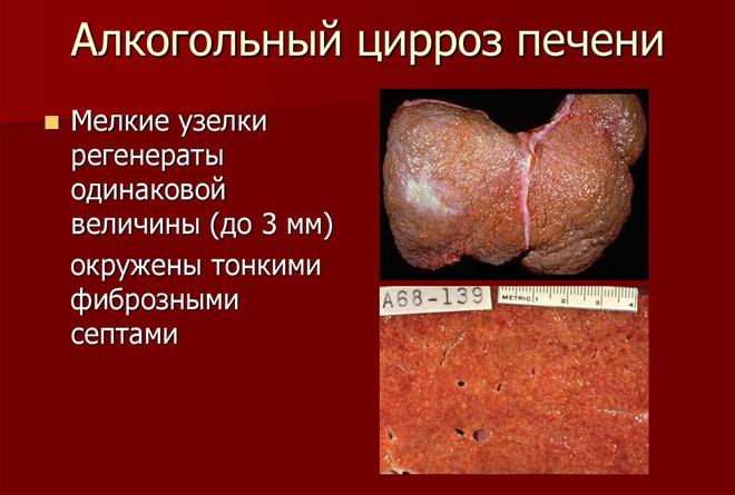 Алкогольный цирроз печени фото
