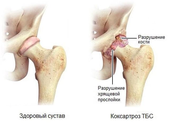 здоровый сустав и коксартроз