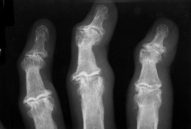 узелки Гебердена на рентгенограмме