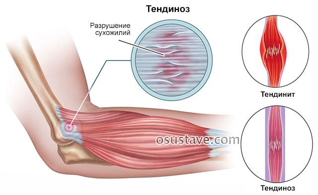 разница тендинита и тендиноза