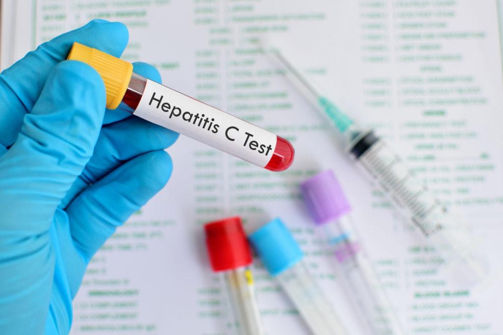 Сдача анализов на ВИЧ и гепатит С