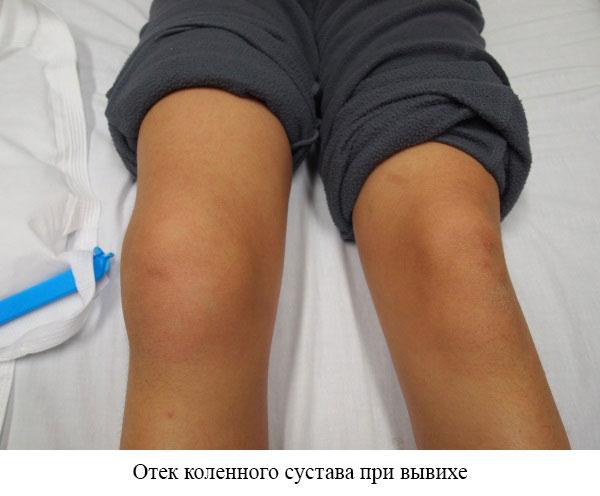 отек коленного сустава при вывихе