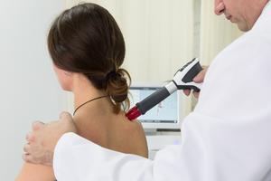 Современные методы удаления бородавок