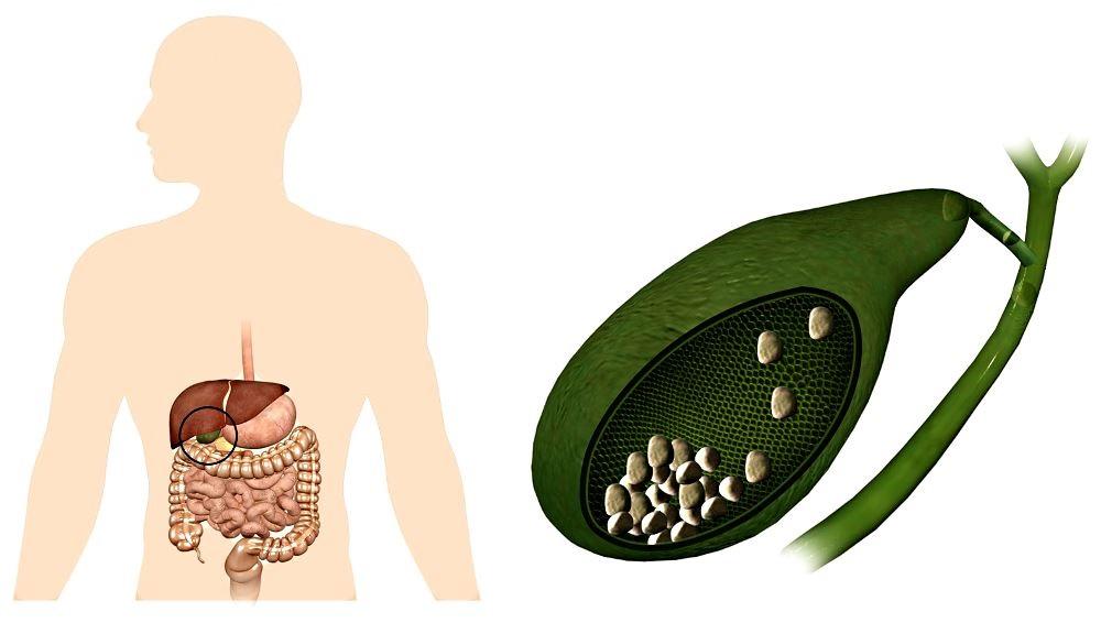 Камни в желчном пузыре препараты