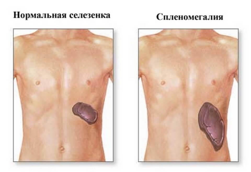 Симптомы надпеченочной желтухи