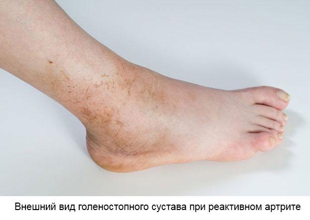 внешний вид голеностопного сустава при реактивном артрите