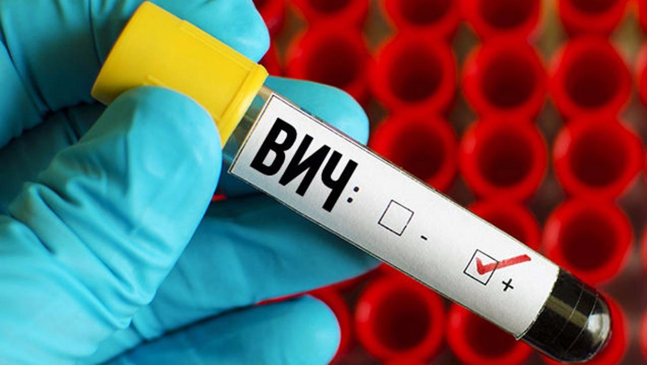 Лечение ВГВ и ВИЧ