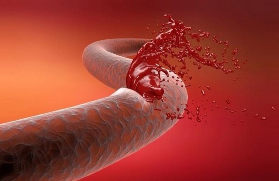 Лапароскопическая холецистэктомия осложнения