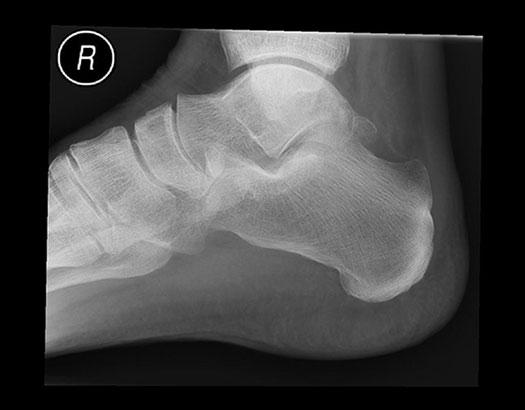 рентгеновский снимок пяточной области