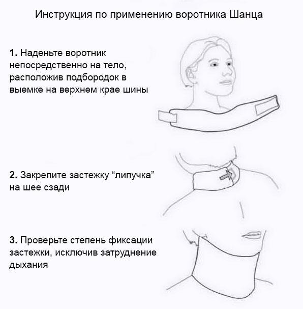 как надевать воротник шанца, инструкция